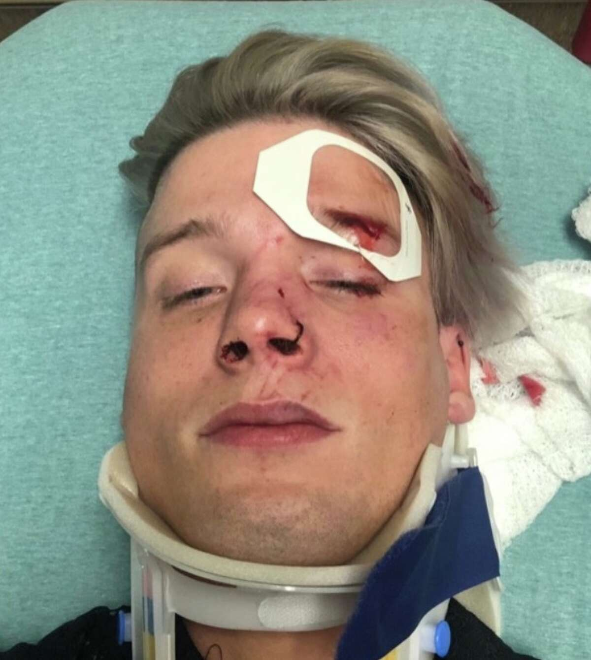 Tristan Perry grew up in The Woodlands. He and Spencer Deehring were attacked in downtown Austin in an alleged hate crime.
