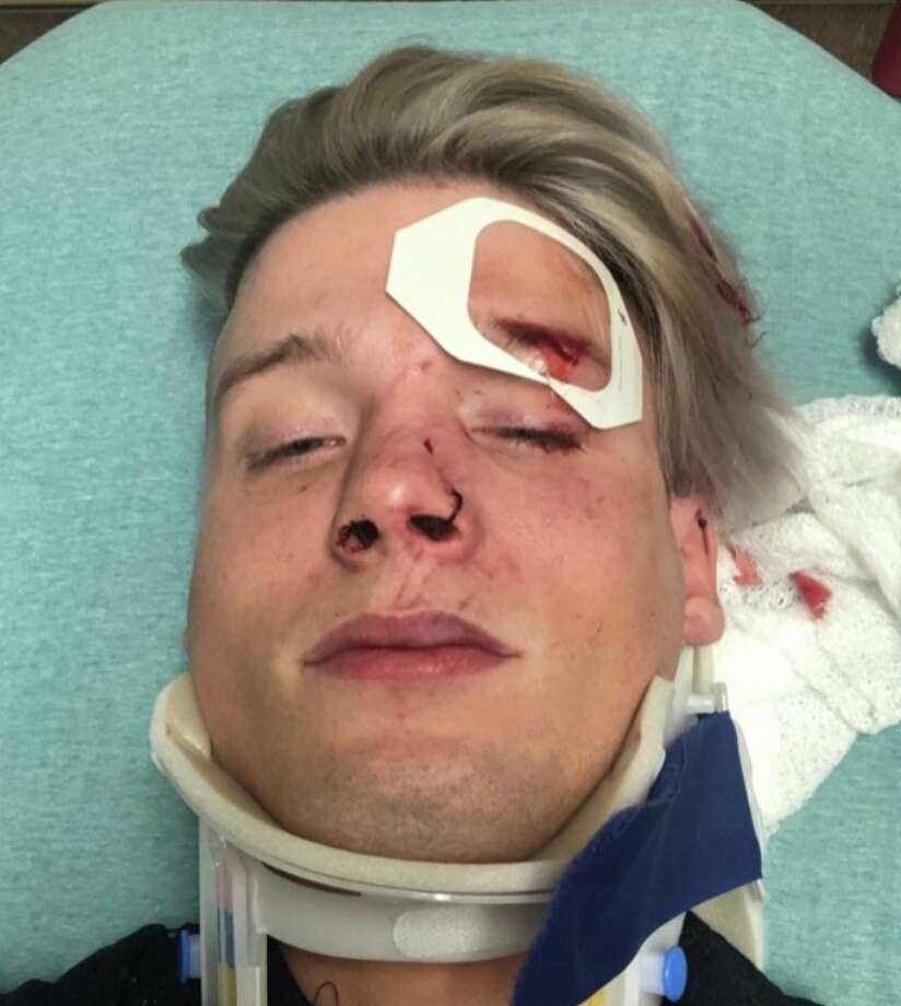 Tristan Perry grew up in The Woodlands. He and Spencer Deehring were attacked in downtown Austin in an alleged hate crime. Photo: Courtesy Spencer Deehring
