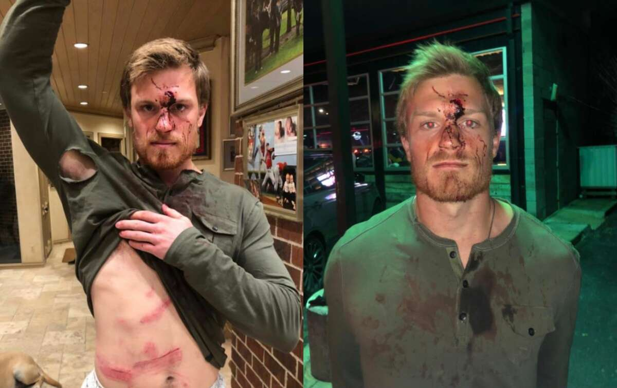 Conner Capel shows his injuries after a bouncer at Houston's Concrete Cowboy Bar allegedly assaulted him and Kacy Clemens, the son of former Houston Astros pitcher Roger Clemens, on Jan. 1, 2019.