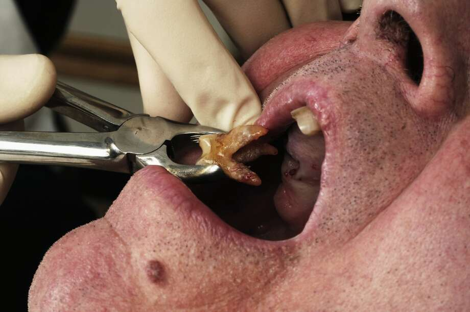 An older man's dental issues is a turn off for a potential mate. Photo: Medic Image/Getty Images/Universal Images Gr
