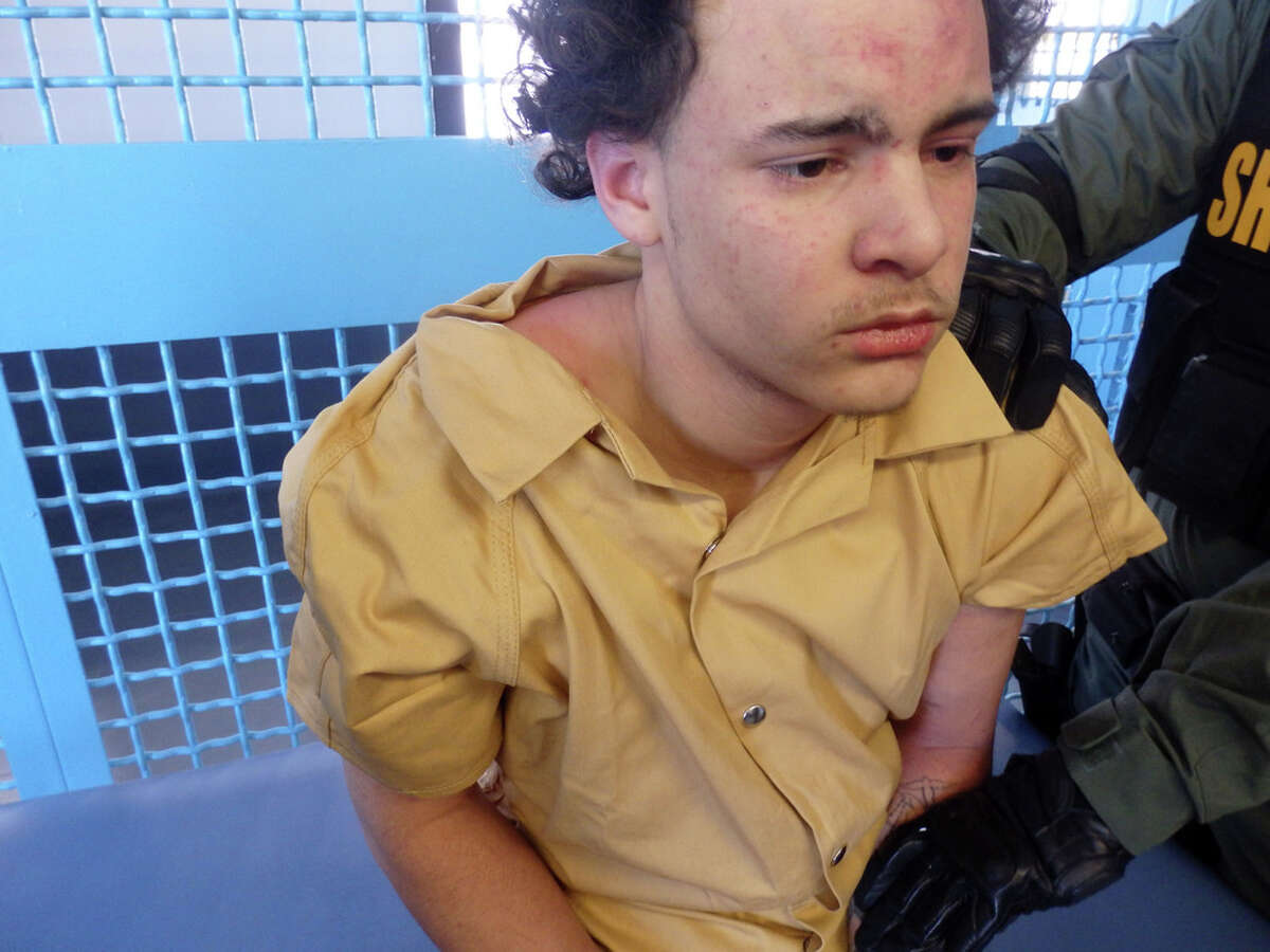 Steven Espinalis pictured after being led into his SHU cell on Feb. 13, 2018, at Albany County Correctional Facility. At the time, he claimed he had just been brutally beaten and left bloodied from multiple assaults by jail officers. He has abrasions on his forehead but no apparent indication that he was