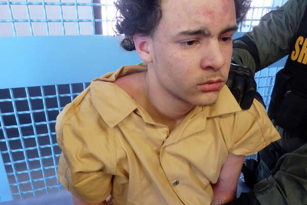 """Steven Espinal is pictured after being led into his SHU cell on Feb. 13, 2018, at Albany County Correctional Facility. At the time, he claimed he had just been brutally beaten and left bloodied from the assault. He has abrasions on his forehead but no indication that he was """"stomped"""" and """"punched in the face twice"""" as the complaint alleges. (Albany County Correctional Facility)"""