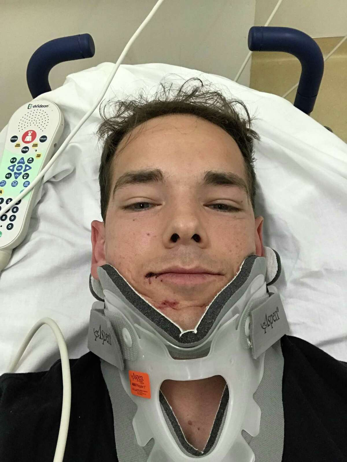 Tyler Pousson was in a motorcycle accident last year and was taken to S.F. General with what turned out to be just
