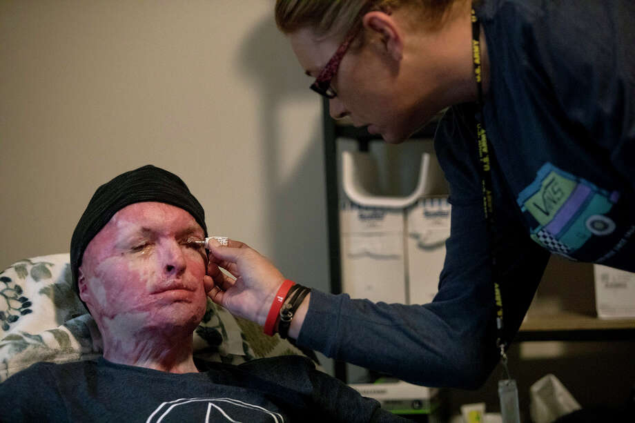 DJ Sutterfield applies an ointment to the eyes of her son, Zachary Sutterfield, in their Fisher House apartment at Joint Base San Antonio-Fort Sam Houston. He is still unable to completely close his eyes due to the burns. Photo: Lisa Krantz / San Antonio Express-News