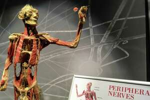 Peripheral nerves are highlighted in one dart-throwing body pose.