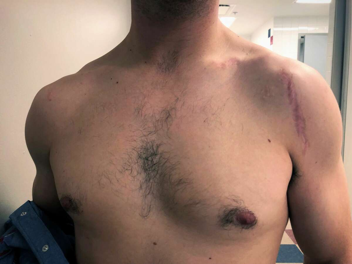 """Bingham has scars on both of his shoulders, """"I've had both of them reconstructed and rebuilt,"""" he said."""