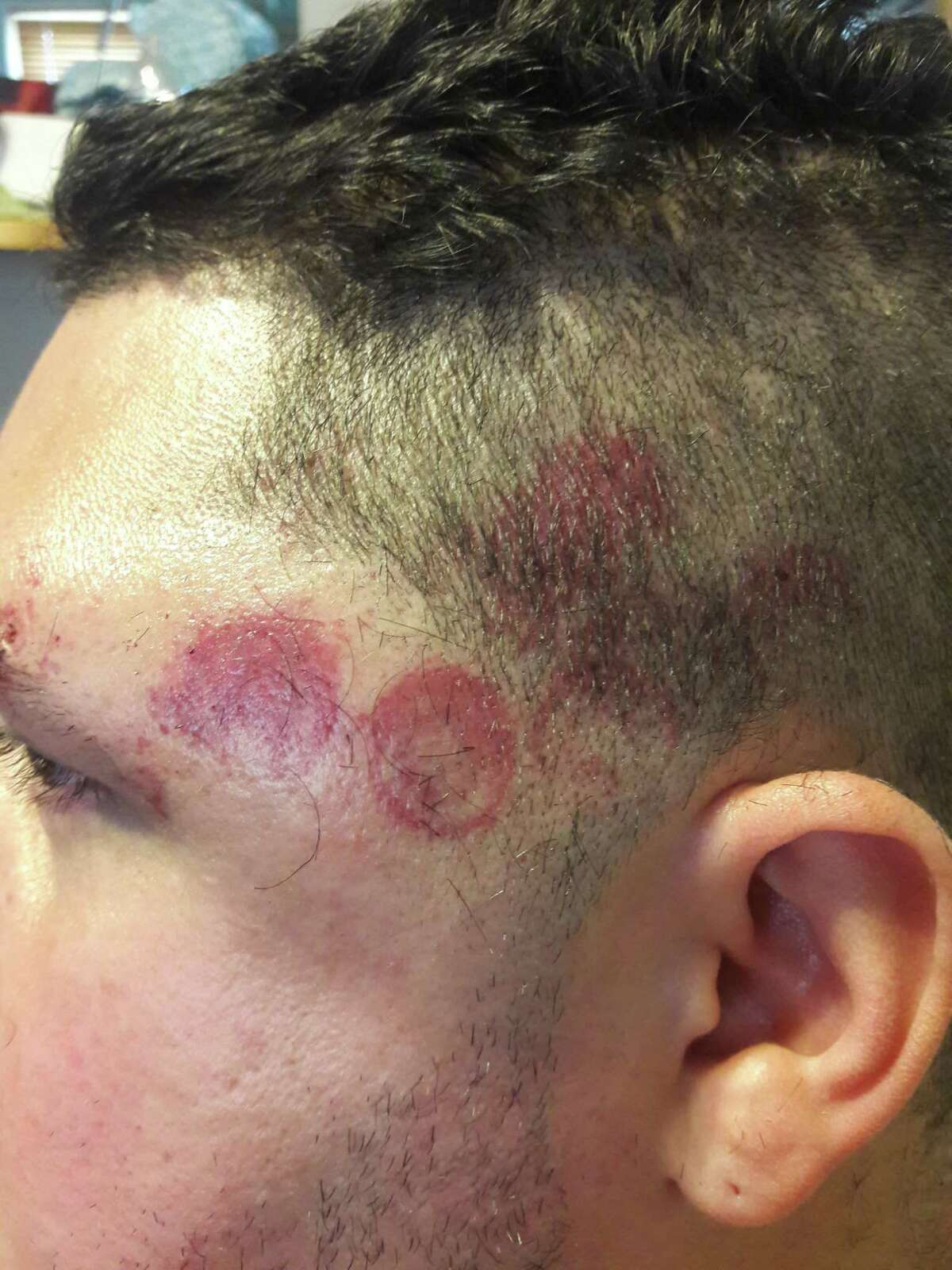 Carmelo Mendez said police made these marks on his head when they broke up a Halloween party in 2017.