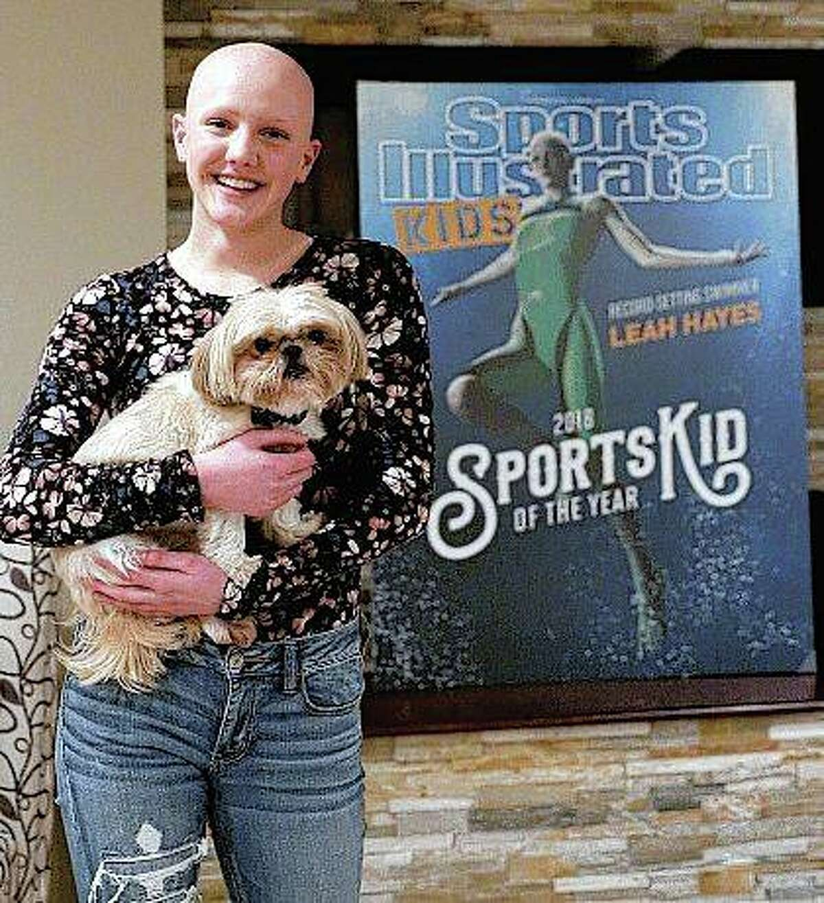 At 13 and almost 5 feet, 7 inches tall, swimmer Leah Hayes has realistic dreams of making an Olympic trials cut next year, and eventually of making the U.S. Olympic team. As a 6-year-old, she was diagnosed with alopecia universalis, which meant she soon would be completely bald. In just four months, she lost all the hair on her scalp and body.