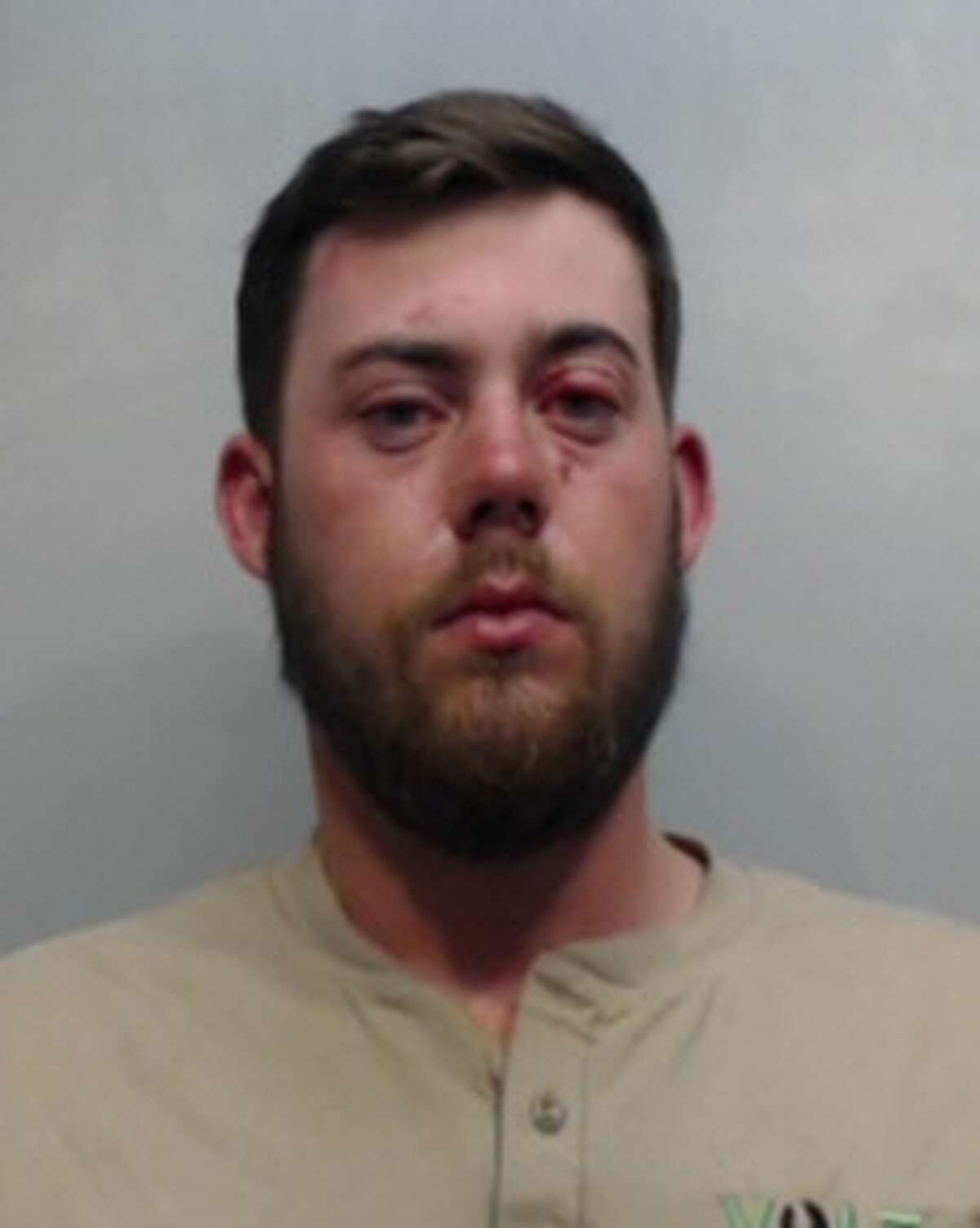 Zachary Adams, 21, faces a charge of intoxication assault on a peace officer.