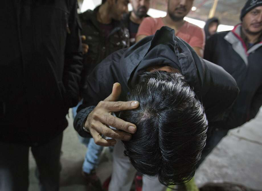 A migrant who claims he was beaten by Croatian police while attempting to enter Croatia shows his injury at a factory hall turned migrants facility in Bihac, Bosnia-Herzegovina. Photo: Darko Bandic / Associated Press