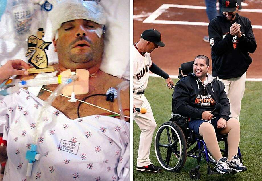"Left: Doctors had to remove part of Bryan Stow's skull to combat swelling in his brain, and he spent nine months in a medically induced coma. Right: Stow, flanked by Giants third-base coach Tim Flannery (left) and pitcher Jeremy Affeldt, calls out, ""Play ball,"" before Game 4 of the World Series at AT&T Park in October 2014. Photo: Courtesy Stow Family And Beck Diefenbach / Special To The Chronicle 2014"
