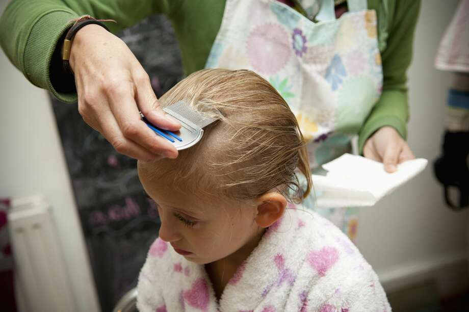 A girl's dad did not do anything to treat a lice infestation on her daughter. Photo: Richard Bailey/Getty Images