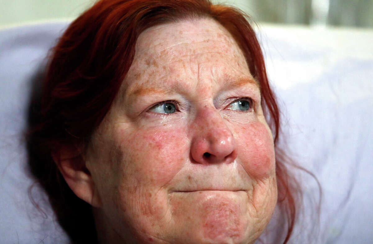 Tears well in her eyes as Deborah Judd, 56, sits in her hospital bed at Harborview Medical Center and talks about the injuries she suffered in a shooting a day earlier, Thursday, March 28, 2019, in Seattle. The afternoon shooting spree and carjacking in Seattle left two people dead and two injured. (AP Photo/Elaine Thompson)