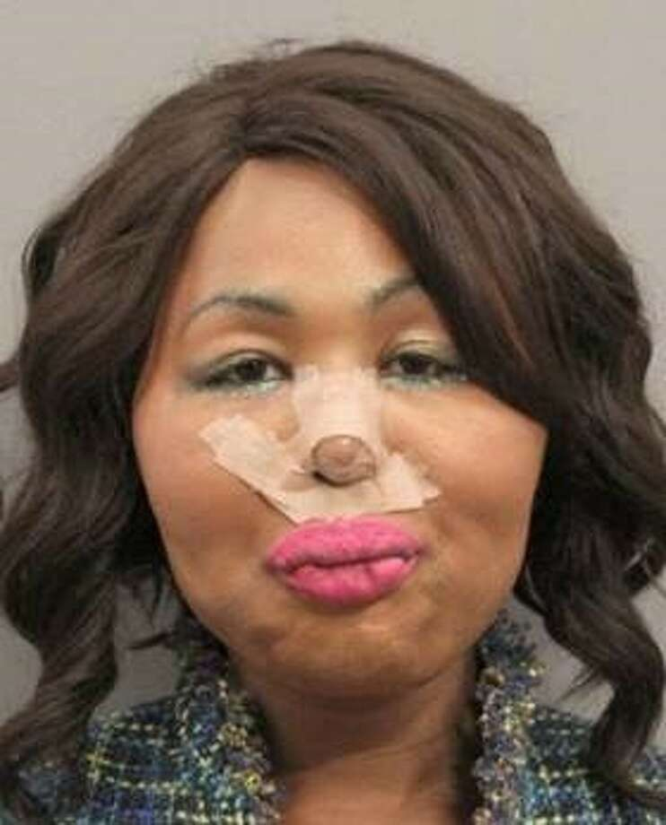 "Iconic Facce was booked into Harris County Jail over the weekend on an active robbery warrant out of Gulfport, Mississippi, police said. The bandages on her face were from ""some type of surgery,"" her defense attorney said. Photo: Gulfport Police Department"