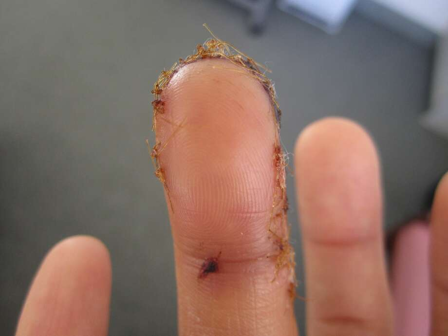 Jenny Shu's stitched finger in 2013. Photo: Courtesy: Jenny Shu