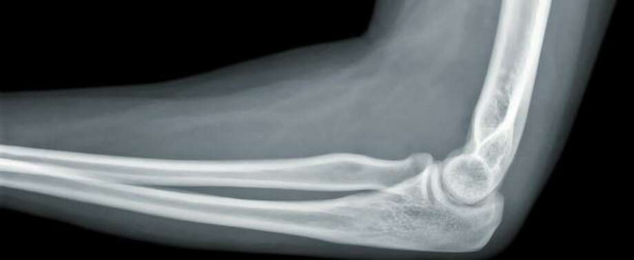 Little League elbow is affecting more youths as baseball becomes a year-round sport. Photo: Kelsey-Seybold Clinic