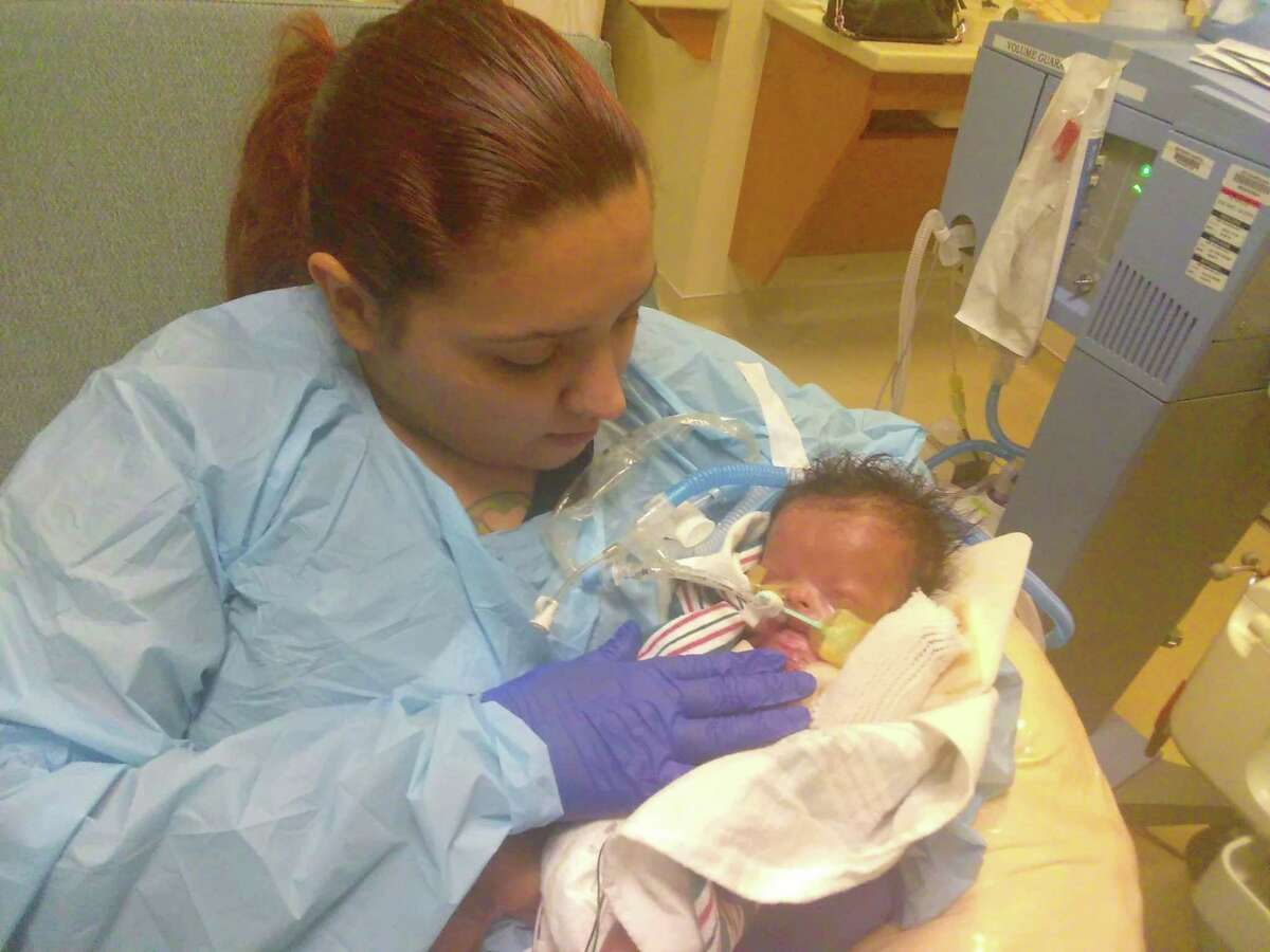 Ja'bari Gray is shown with his mother, Priscilla Maldonado, in this family photo. Ja'bari, who has a rare skin condition called Aplasia Cutis, was born with most of his skin missing.