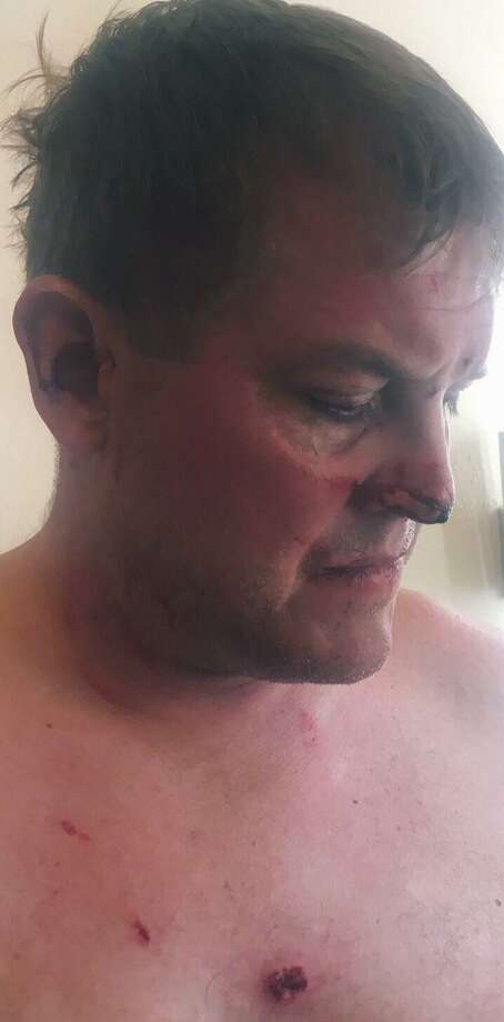 Gavin Scott Hapgood's family released a photo showing bite marks to his face and chest they say occurred during a struggle with a hotel worker in Anguilla. Photo: Contributed Photo
