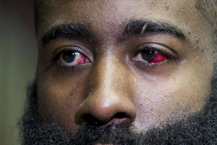 Houston Rockets guard James Harden speaks to the media during Rockets practice at Toyota Center on Thursday, May 2, 2019, in Houston. The Rockets, down 0-2 in the NBA Western Conference semifinals, play the Golden State Warriors in Game 3 on Saturday. Blood can still be seen in his injured left eye.