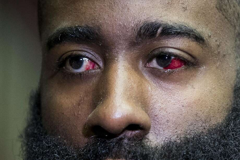 Houston Rockets guard James Harden speaks to the media during Rockets practice at Toyota Center on Thursday, May 2, 2019, in Houston. The Rockets, down 0-2 in the NBA Western Conference semifinals, play the Golden State Warriors in Game 3 on Saturday. Blood can still be seen in his injured left eye. Photo: Brett Coomer, Staff Photographer