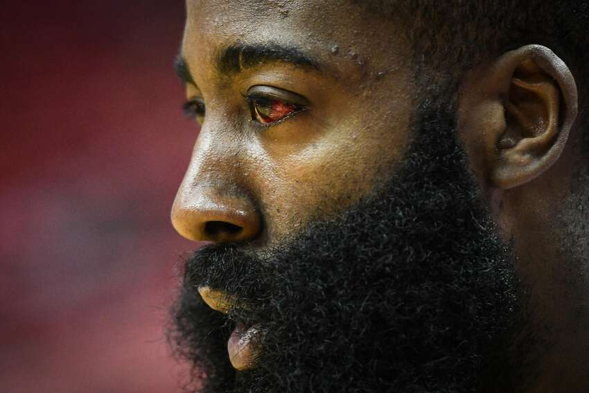 Houston Rockets guard James Harden (13), seen with an injured eye from the previous game, warms up before game 3 of the NBA Western Conference Semifinals between the Golden State Warriors and Houston Rockets at the Toyota Center in Houston, Texas, on Saturday, May 4, 2019.
