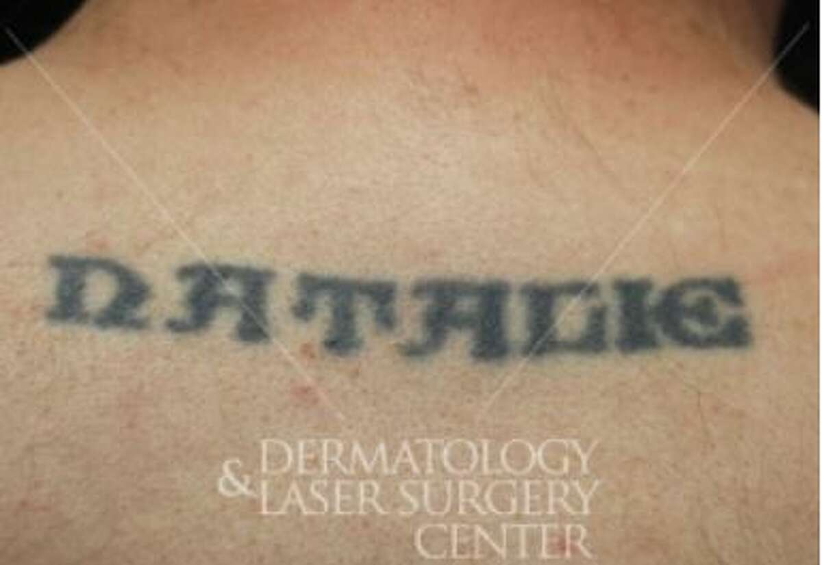 Case No. 1: Pre-tattoo removal