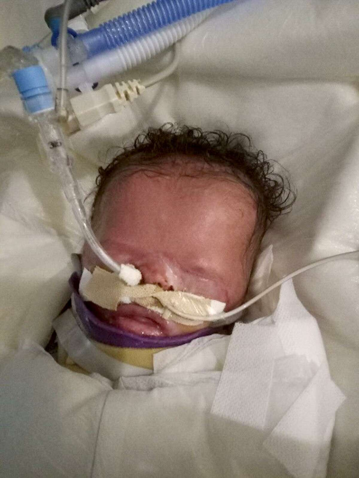 Pictured above is Ja'bari Gray, a baby born on New Year's Day in San Antonio without skin on most of his body and fused eyelids.