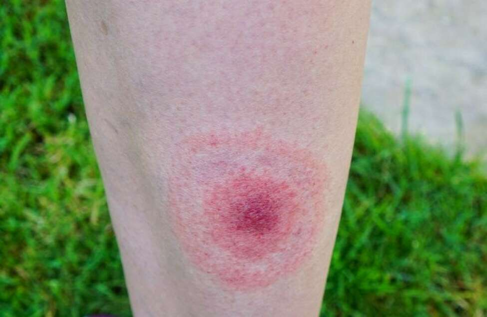 Researchers are inviting New Yorkers who develop a circular rash following a tick bite this summer to consider donating their blood. The above rash is an example of what to watch for.