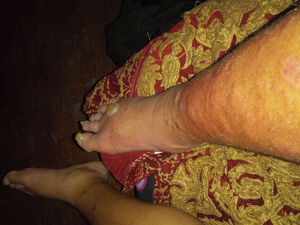 Adam Perez, 42, said he dipped his toes into the ocean near Waters Edge Park by downtown Corpus Christi and his right foot and leg began swelling soon thereafter. Perez was diagnosed with vibriosis and told his life was at risk if he didn't undergo surgery.