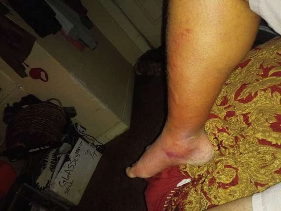 Adam Perez, 42, said he dipped his toes into the ocean near Waters Edge Park by downtown Corpus Christi and his right foot and leg began swelling soon thereafter. Perez was diagnosed with vibriosis and told his life was at risk if he didn't undergo surgery. Photo: Courtesy Adam Perez