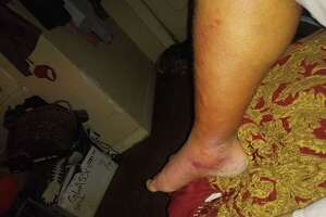 Adam Perez, 42, of Three Rivers, Texas, said he dipped his toes into the ocean near Waters Edge Park by downtown Corpus Christi and his right foot and leg began swelling soon thereafter. Perez was diagnosed with vibriosis and told his life was at risk if he didn't undergo surgery.
