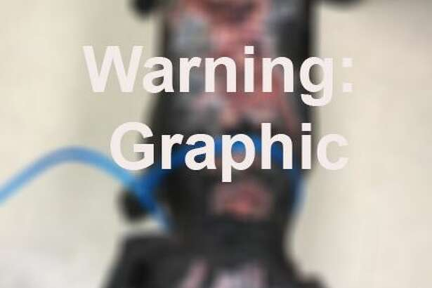 WARNING: GRAPHICPhoenix is a 2-year-old black male lab mix. He was found Tuesday off Rocky Falls in the Richmond area with apparent chemical burns on his head and down his back.