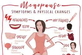 Menopause symptoms and physical changes.