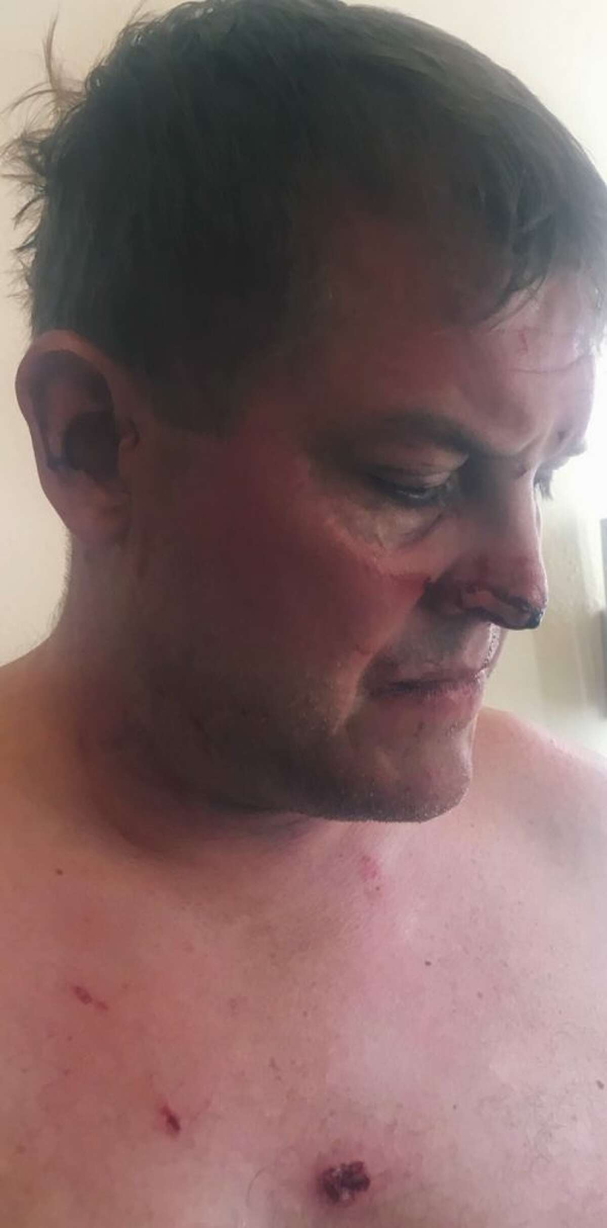 Scott Hapgood's injuries, photo courtesy the Hapgood family