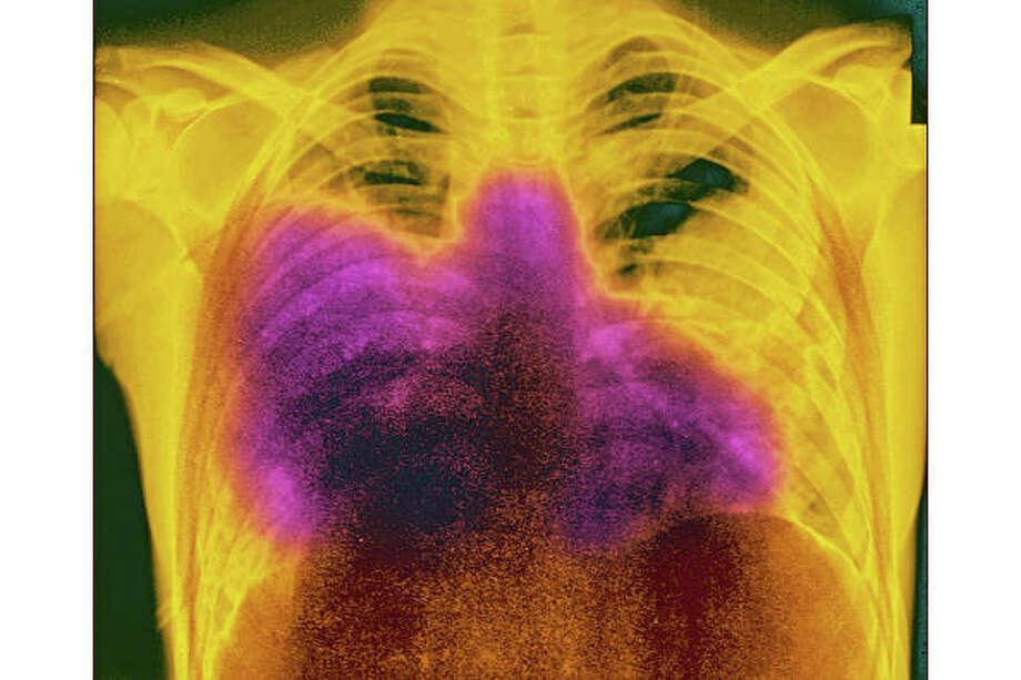 >>Facts about Legionnaires' disease