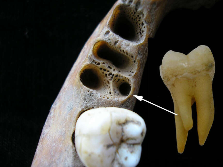 A three-rooted lower first molar and the jaw it belonged to, from a modern human. Photo: California State University Handout Photo By Christine Lee / handout