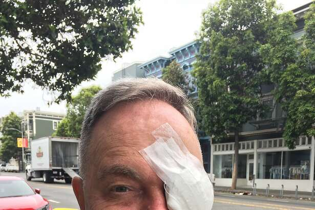 Kevin Fisher-Paulson after cataract surgery.