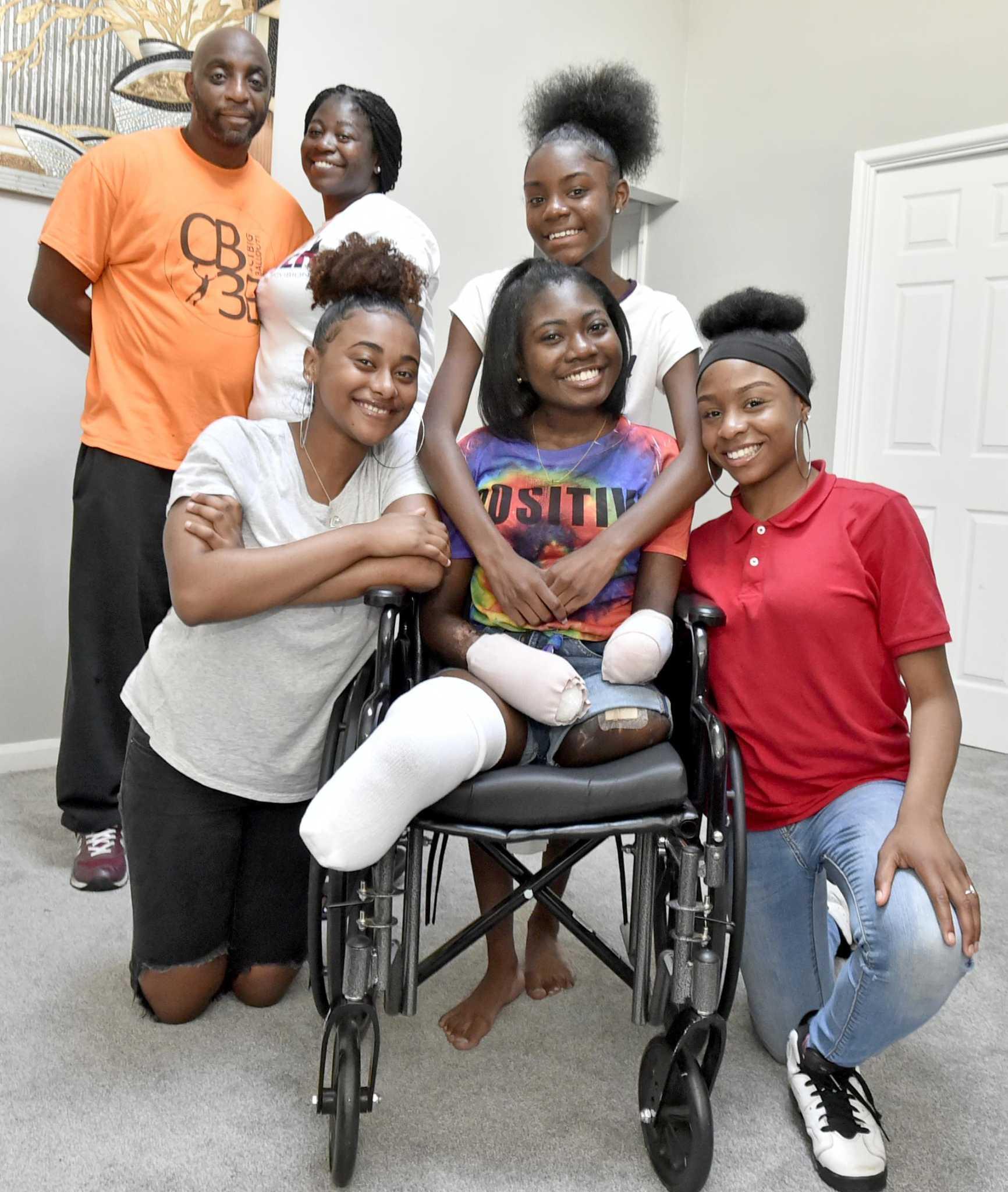 Loss of limbs won't keep Hamden teen's spirit down