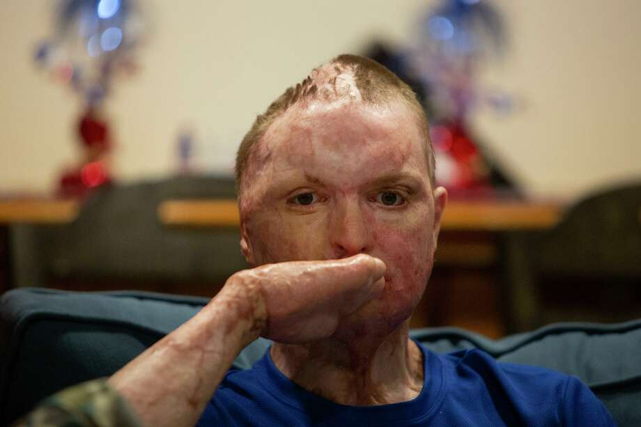 Zachary Sutterfield, 22, of San Angelo, suffered third-degree burns to nearly 70 percent of his body as he barely escaped a fire that someone deliberately set at Iconic Village Apartments in San Marcos on July 20, 2018. More than two years later, he's still undergoing surgeries and receiving major medical care. Photo: Lisa Krantz /San Antonio Express-News / San Antonio Express-News