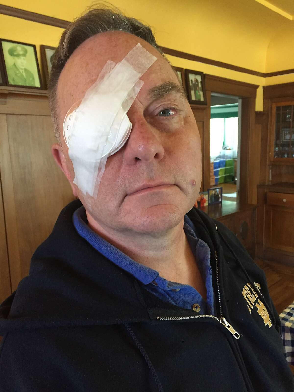 Kevin Fisher-Paulson had surgery on his right eye.