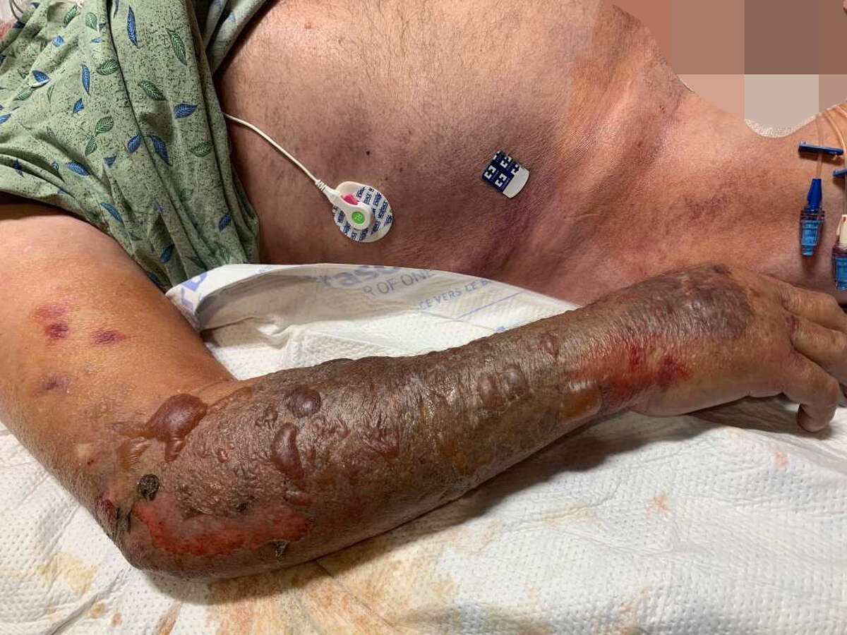 A photo of Jerry Sebek's right arm that was infected with a flesh-eating disease, family members said.