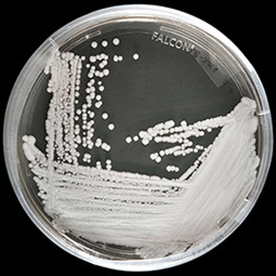 Deadly new fungal superbug spreading across US