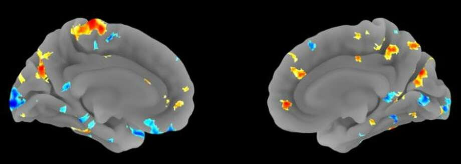 Brain scans show specific areas of the brain where activity predicted blood pressure during stress. Cool colors (blue-green) mark brain areas where activity predicted lower blood pressure under stress. Hot colors (red-yellow) mark areas that predicted higher blood pressure under stress. (Image courtesy of Peter Gianaros, Ph.D.)