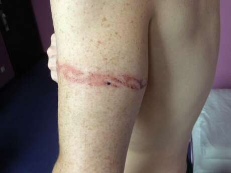 Chemical burn from a temporary tattoo Photo: Ed Walsh