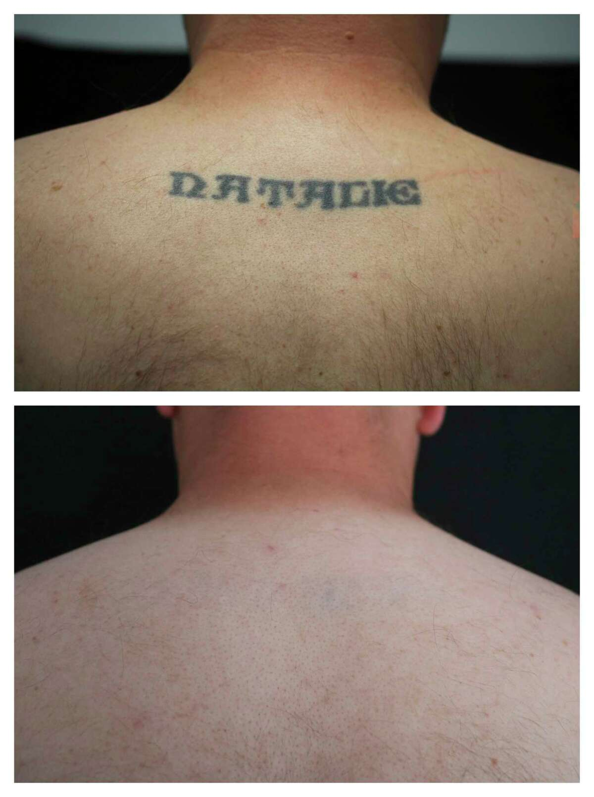 This combination of undated photos provided by Dr. Paul Friedman in July 2019 shows the back of patient Ryan Tucker before and after a series of laser tattoo removal procedures in Houston. Friedman, a spokesman for the American Society for Dermatologic Surgery, says people of all ages are seeking removals, but hea€™s seen an increase among millennials. The medical group estimates its members performed 85,000 tattoo removals in 2017, the latest data available, but that doesna€™t include other medical workers remove them. (Dr. Paul Friedman via AP)