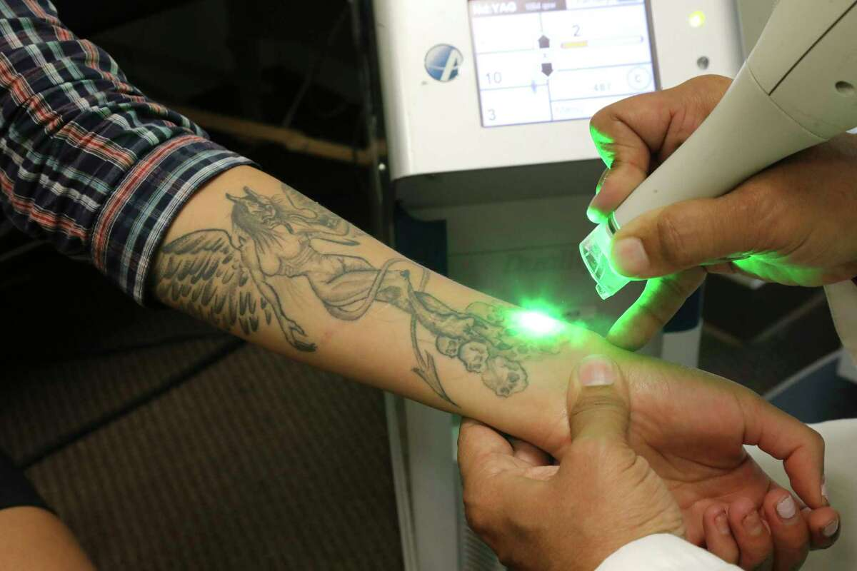 Troy Clarke uses a laser to begin the process of removing Flower Meloa€™s tattoos at Homeboy Industries, a charity intervention program in Los Angeles, July 18, 2017. For former gang members, old tattoos are an obstacle to employment and family life, and there is a huge demand for their removal, no matter how painful the process may be. (Jim Wilson/The New York Times) ORG XMIT: XNYT33