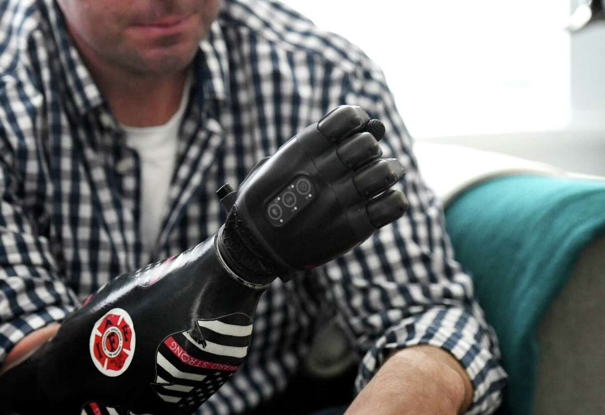 Josh Woodward demonstrates the capabilities of his prosthetic hand on Monday, Aug. 5, 2019, at his home in Albany, N.Y. Josh lost a hand, toes and part of a foot when the Albany Airport firefighter was stricken with sepsis earlier this year. The family has started a nonprofit called Woodward Strong. (Will Waldron/Times Union)