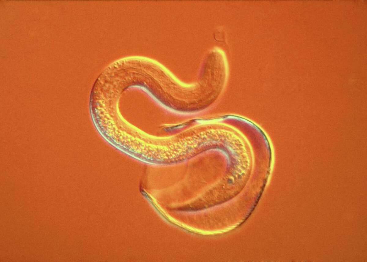 This file photo shows an intestinal roundworm (not the similarly shapedThelazia gulos, an eye roundwormthat lives in or around its host's eyes.)T.gulos normally infects cattle, but there have been two human cases.