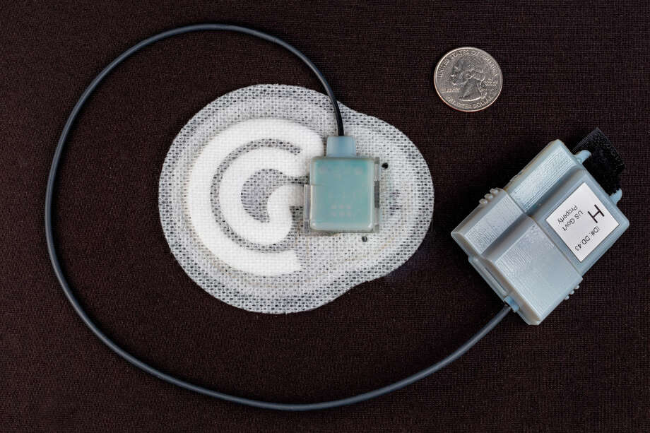 """A prototype of General Electric's """"sweat patch"""" that measures hydration levels. GE and its partners are planning a patch that could measures a range of health vitals for doctors' patients. Photo: MIKE HEMBERGER, GE Global Research Center"""