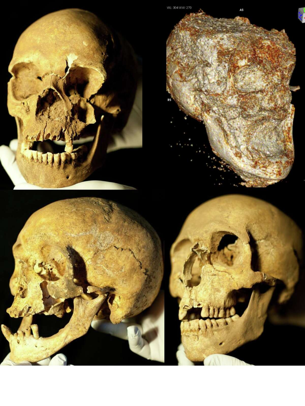 Four skulls were excavated from the hospital construction site. A CT scan was made of one skull, which was too fragile.